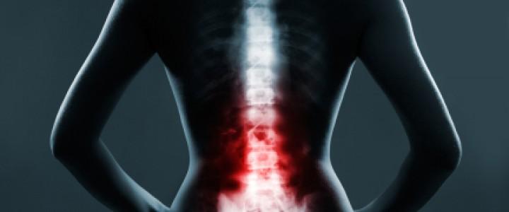 dolor-espalda-articulo