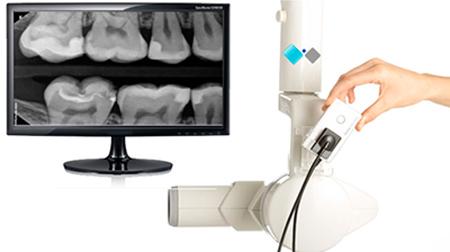 Radiografías completamente digitales ¡50% MENOS RADIACION!