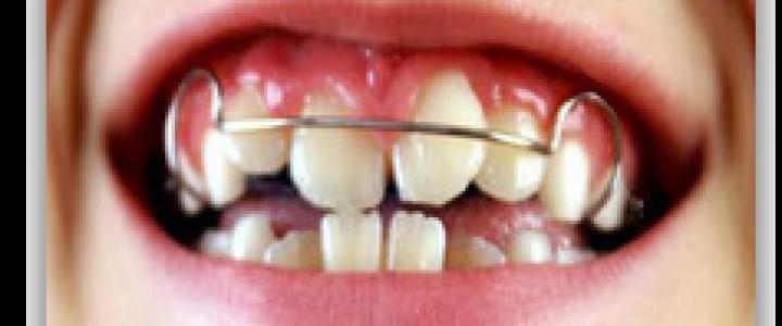dentista en cuernavaca Limonchi. odontólogo en cuernavaca.